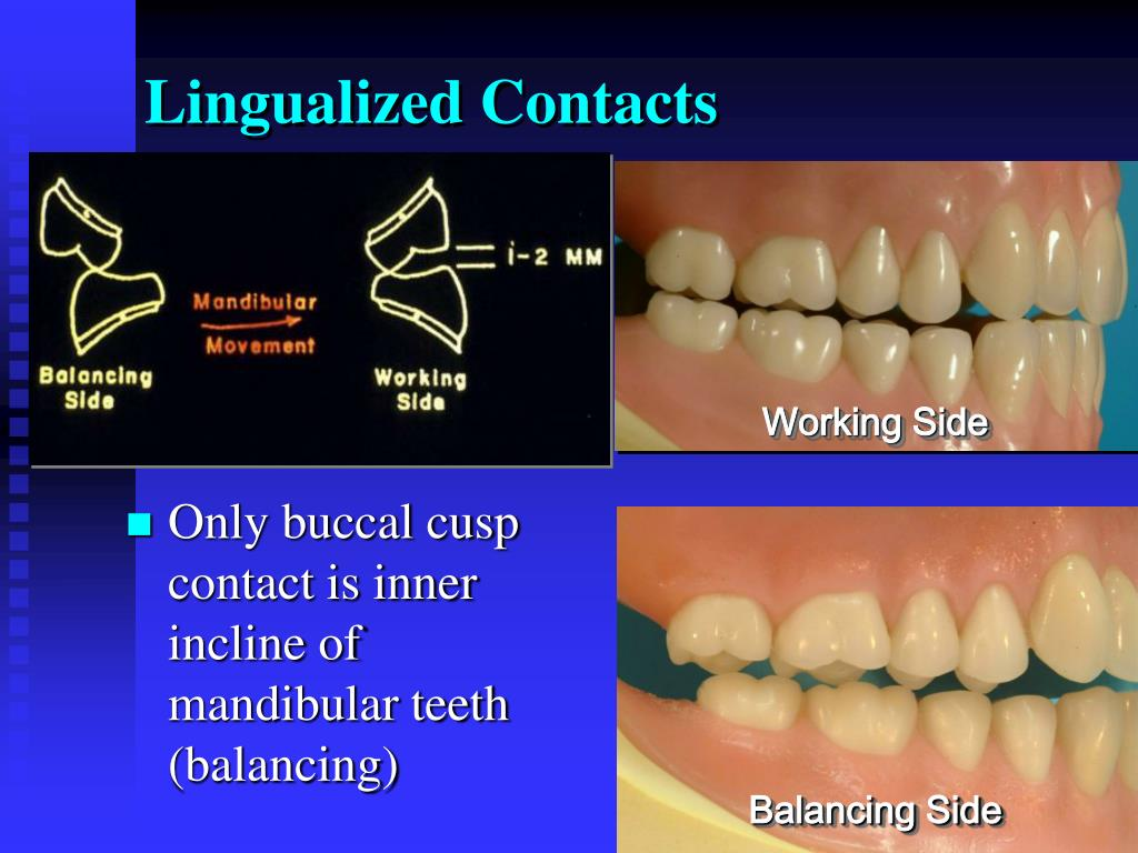 Lingualized Contacts