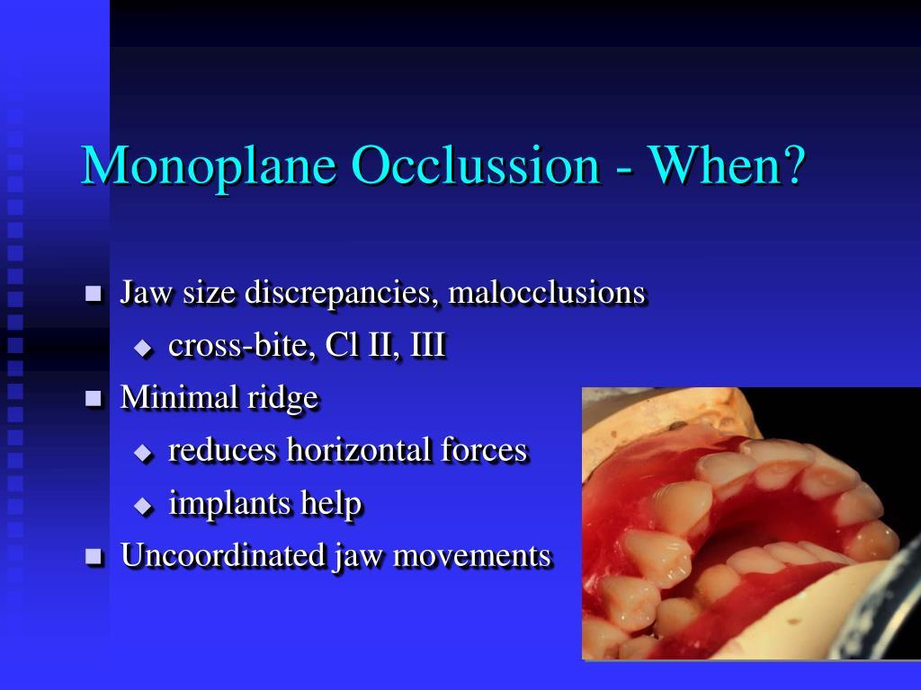 Monoplane Occlussion - When?
