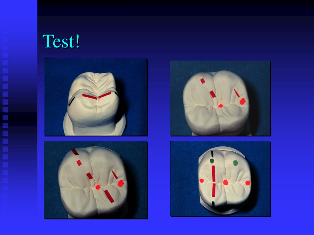 Test!