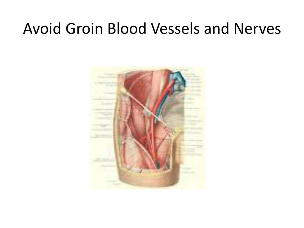 Avoid Groin Blood Vessels and Nerves