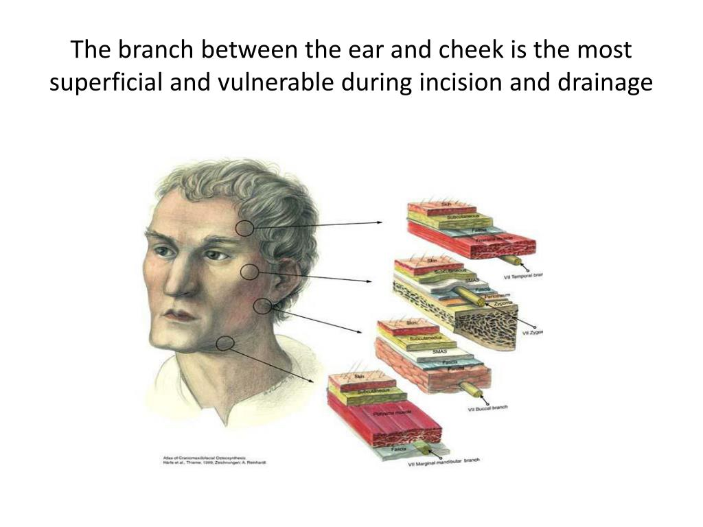 The branch between the ear and cheek is the most superficial and vulnerable during incision and drainage