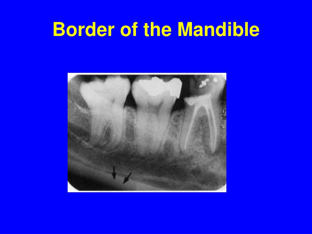 Border of the Mandible