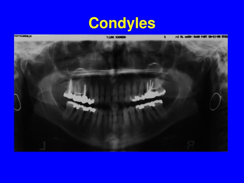 Condyles