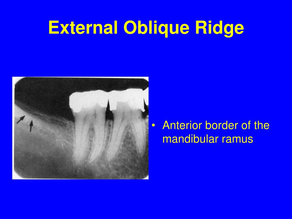 External Oblique Ridge
