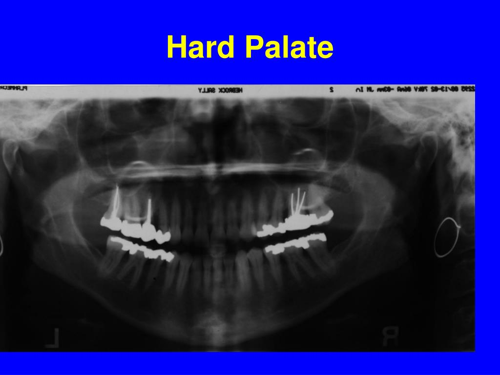Hard Palate