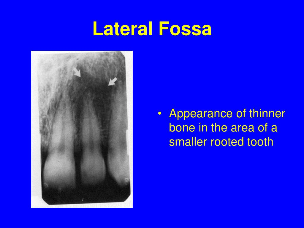 Lateral Fossa