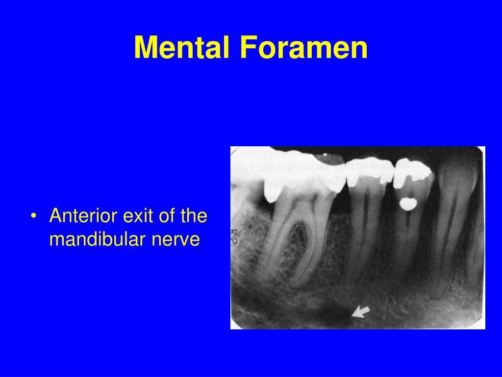 Mental Foramen