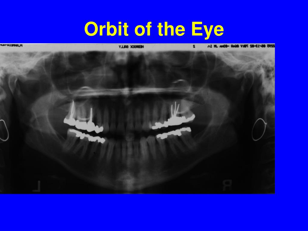 Orbit of the Eye