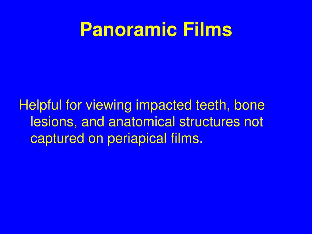Panoramic Films
