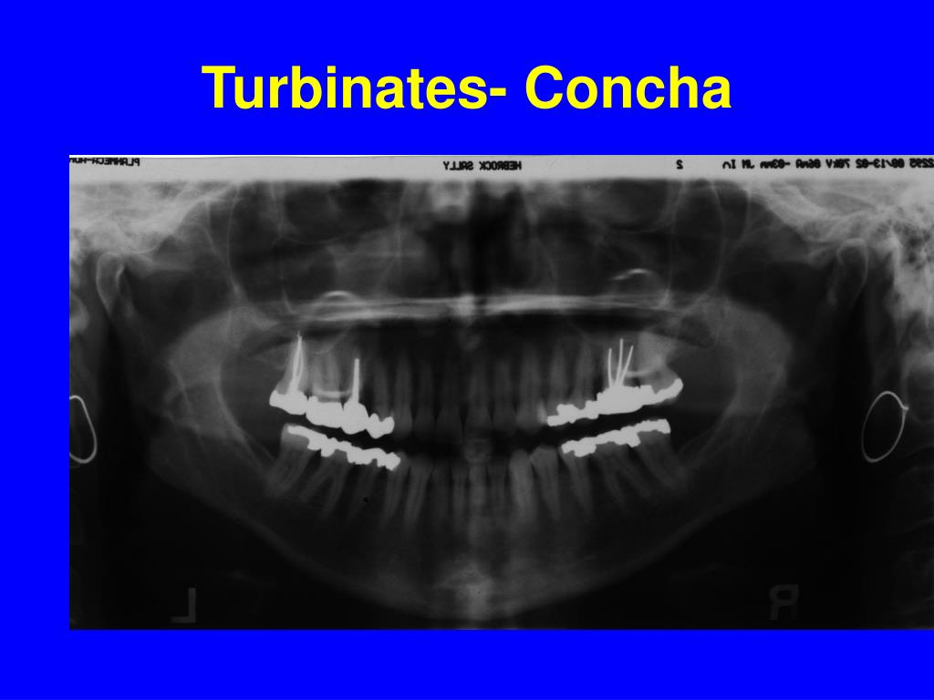 Turbinates- Concha