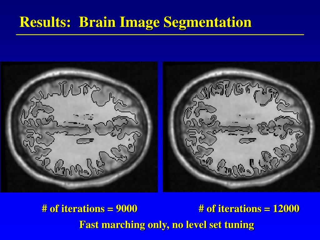 Results:  Brain Image Segmentation