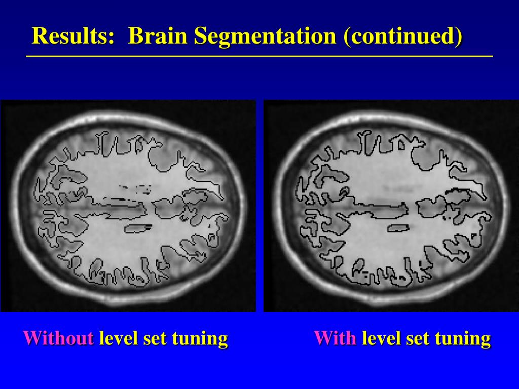 Results:  Brain Segmentation (continued)