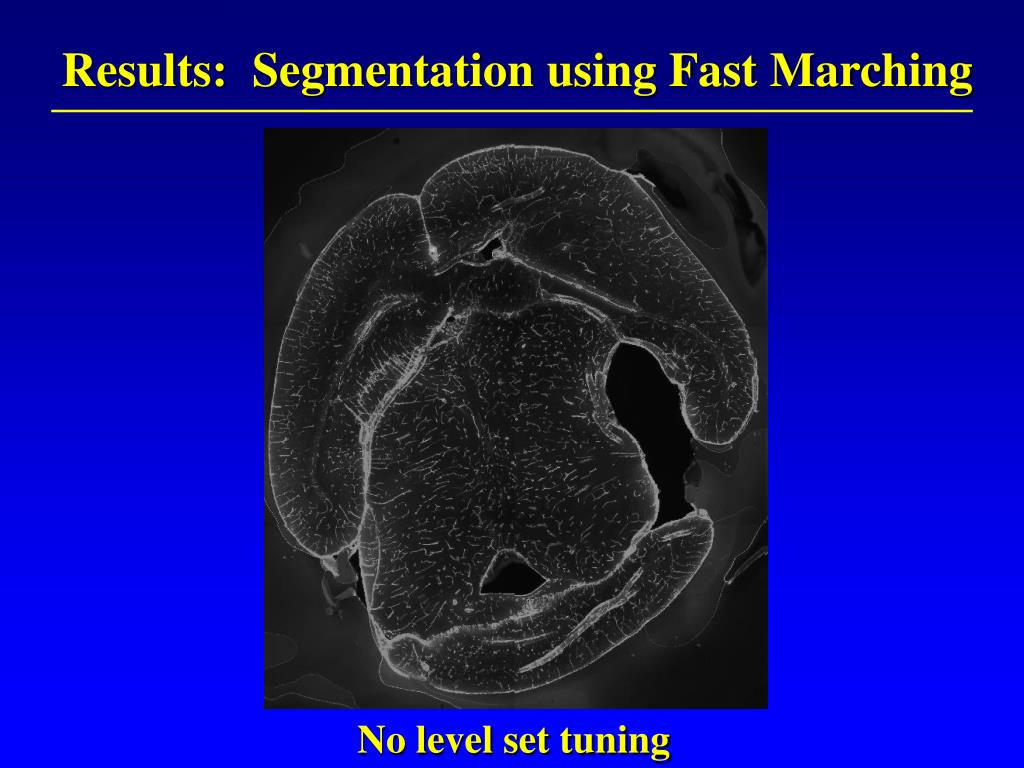 Results:  Segmentation using Fast Marching