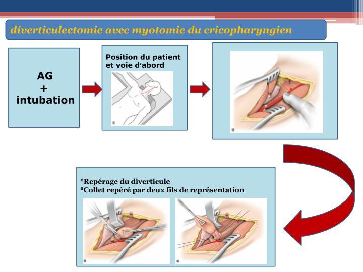diverticulectomie avec myotomie du cricopharyngien