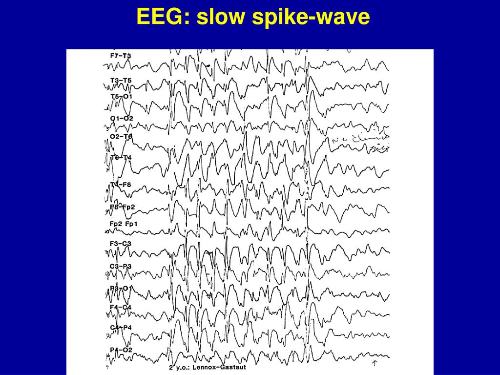 EEG: slow spike-wave