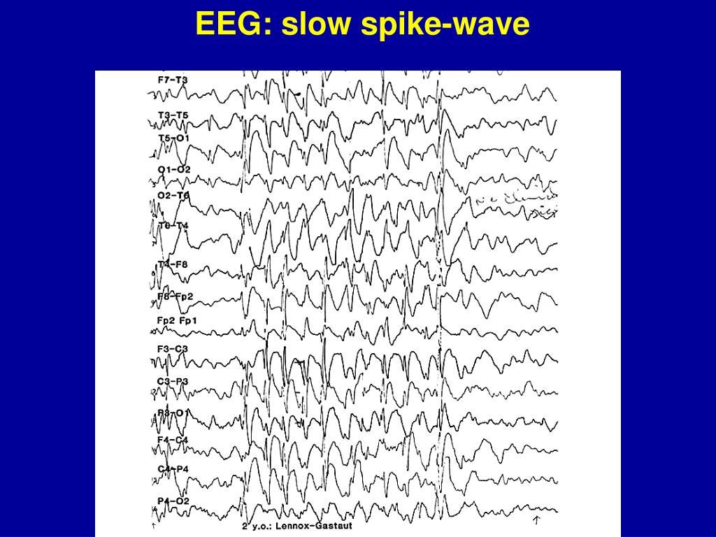 EEG: slow spike-wave