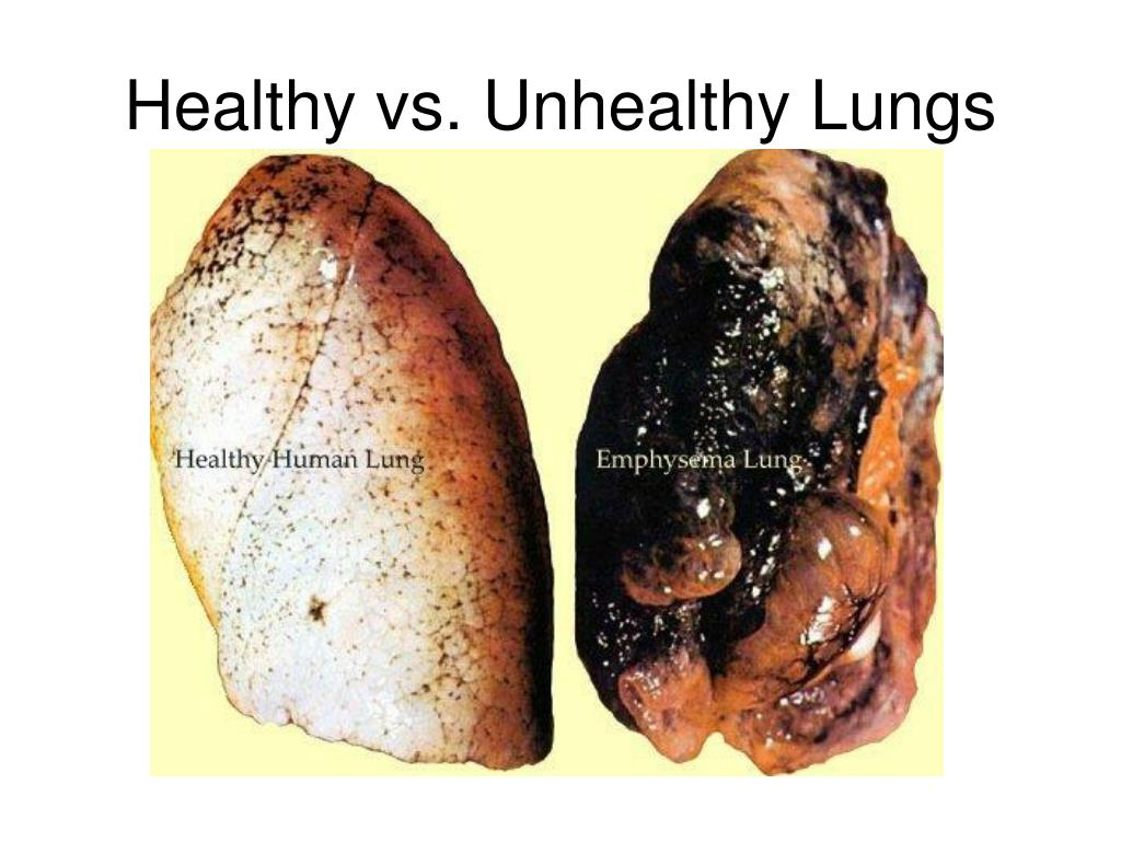 Healthy vs. Unhealthy Lungs