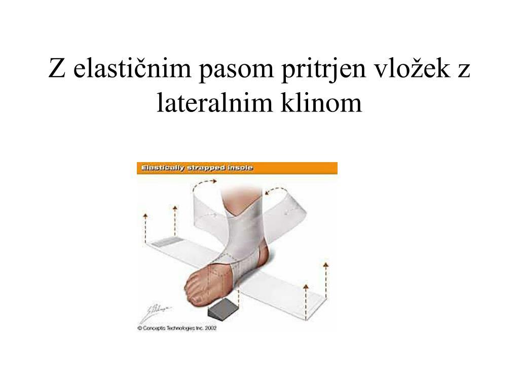 Z elastičnim pasom pritrjen vložek z lateralnim klinom
