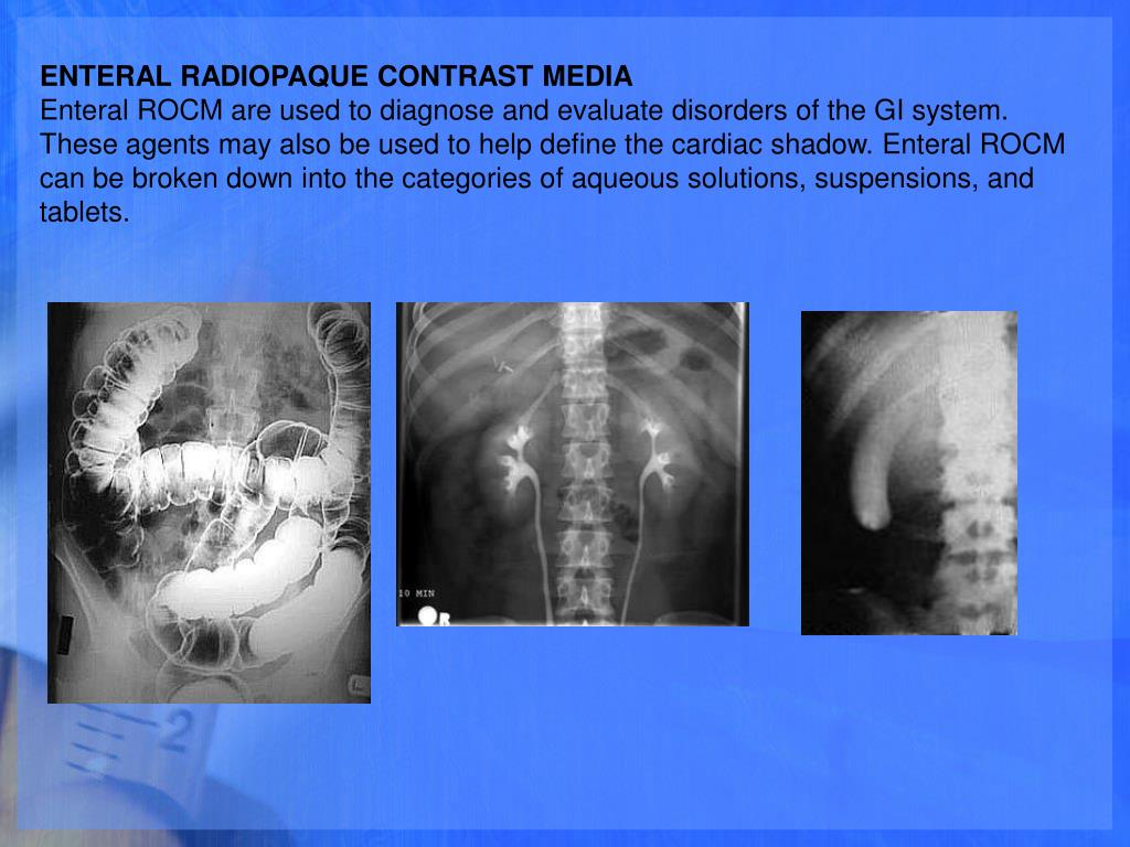 ENTERAL RADIOPAQUE CONTRAST MEDIA