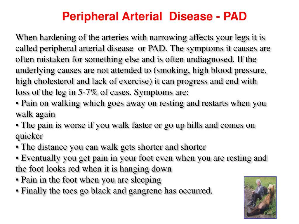 Peripheral Arterial  Disease - PAD
