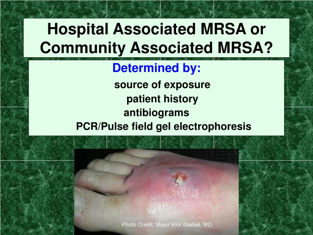 Hospital Associated MRSA or Community Associated MRSA?