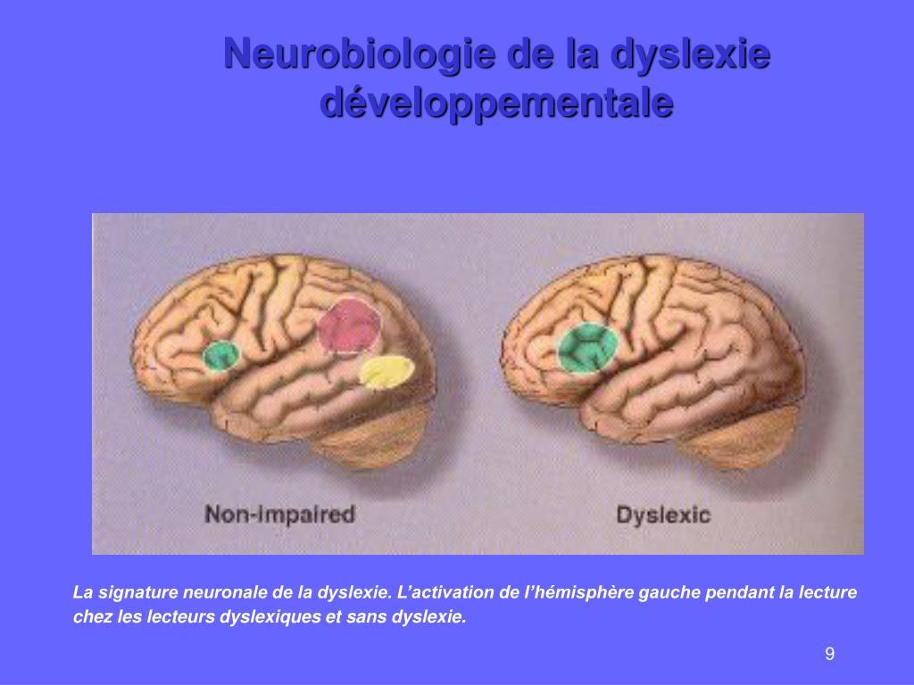 Neurobiologie de la dyslexie développementale