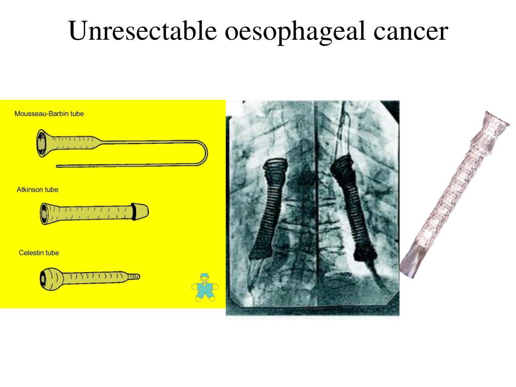 Unresectable oesophageal cancer