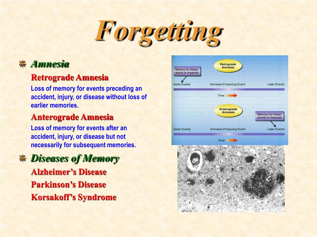 Forgetting