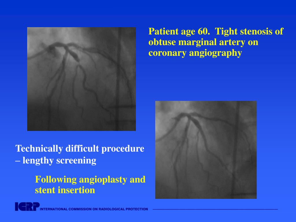 Patient age 60.  Tight stenosis of obtuse marginal artery on
