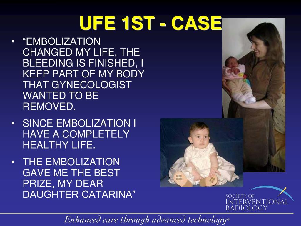 UFE 1ST - CASE