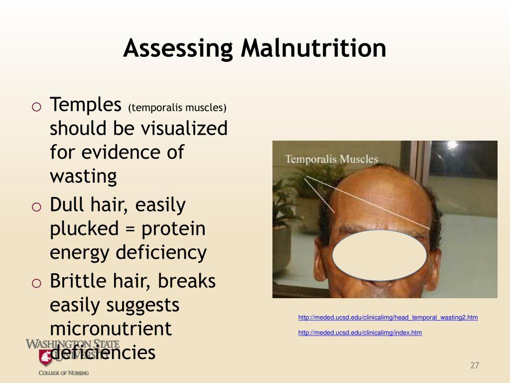 Assessing Malnutrition