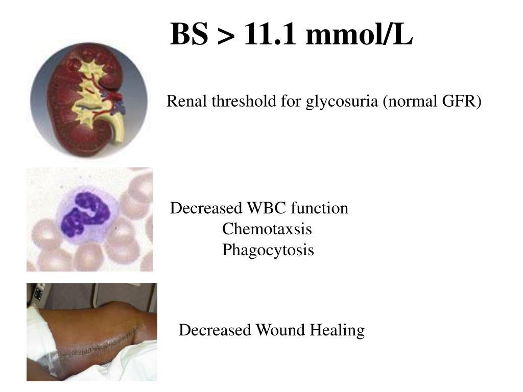 BS > 11.1 mmol/L