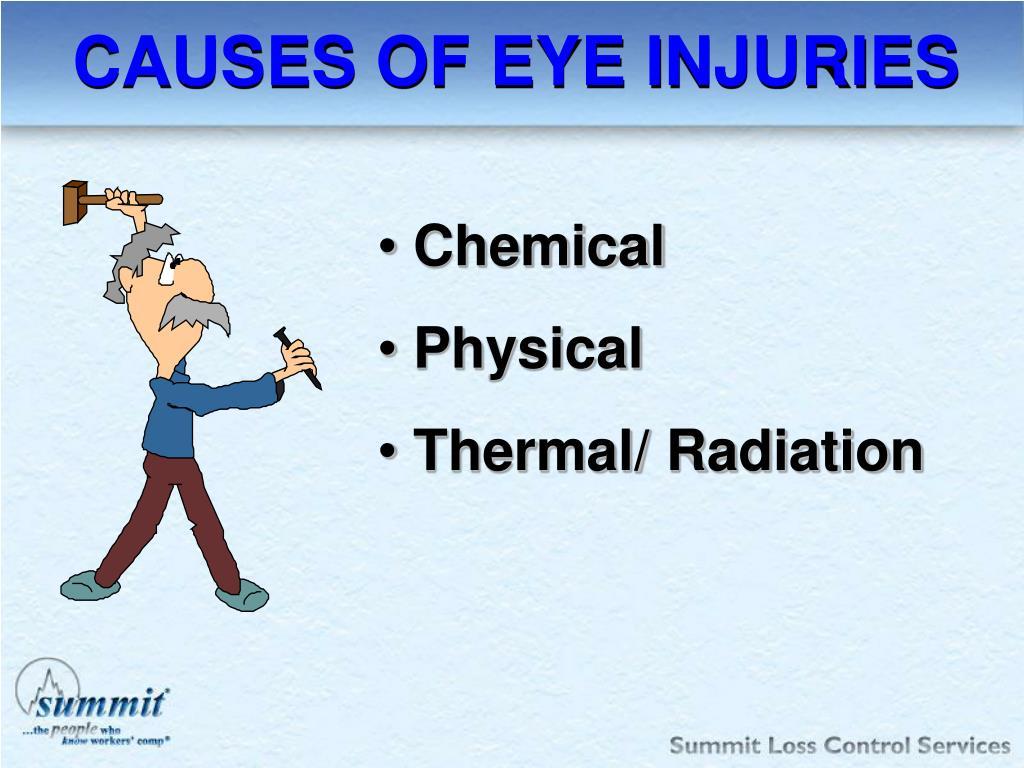 CAUSES OF EYE INJURIES