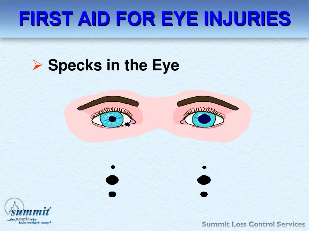 FIRST AID FOR EYE INJURIES