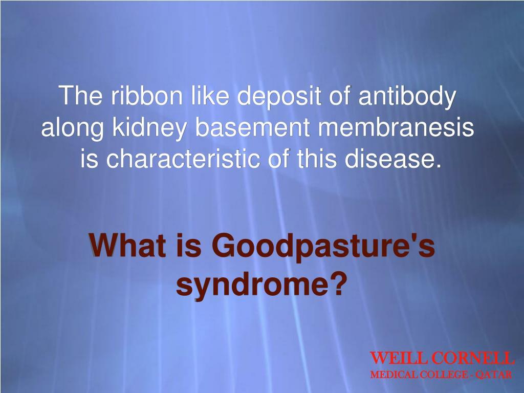 The ribbon like deposit of antibody along kidney basement membranesis