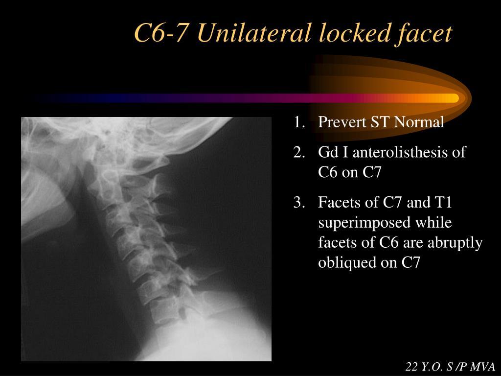 C6-7 Unilateral locked facet