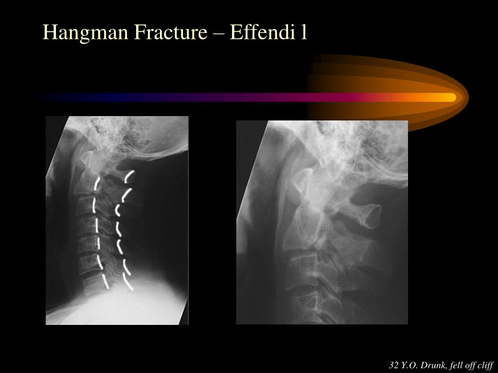 Hangman Fracture – Effendi l