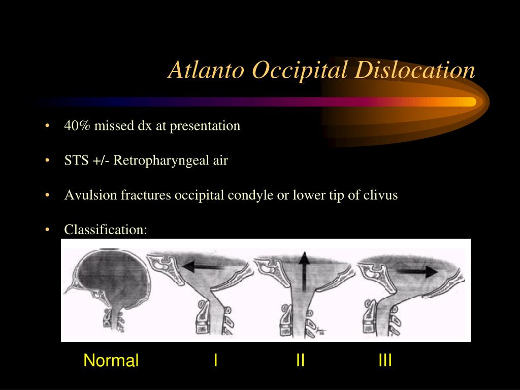 Atlanto Occipital Dislocation