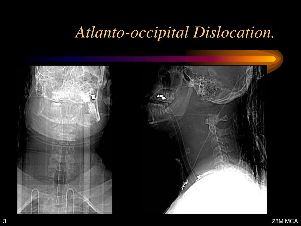 Atlanto-occipital Dislocation.