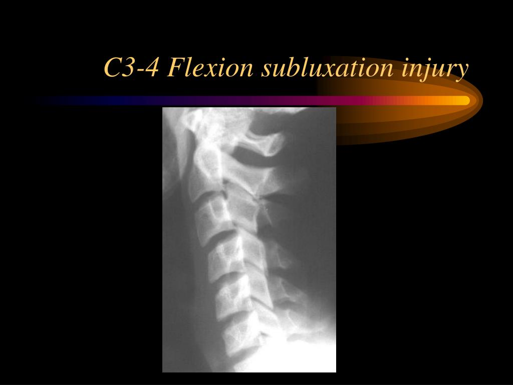 C3-4 Flexion subluxation injury