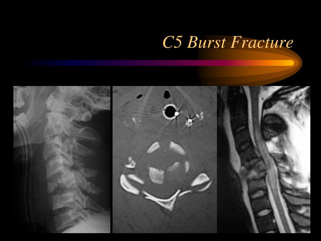 C5 Burst Fracture