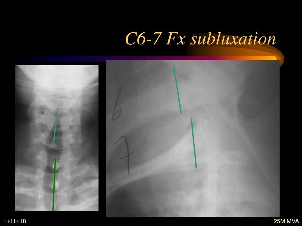 C6-7 Fx subluxation