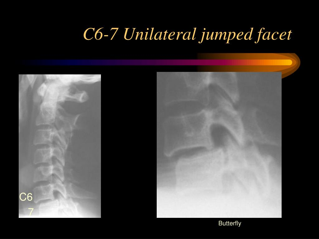 C6-7 Unilateral jumped facet