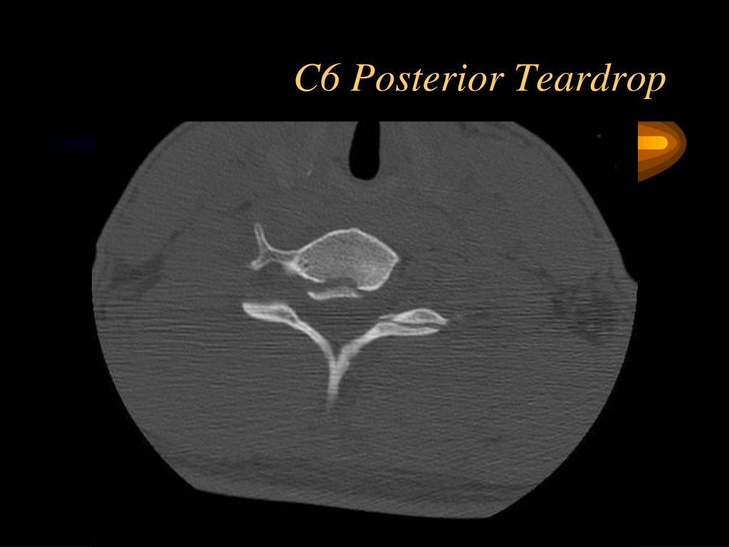 C6 Posterior Teardrop