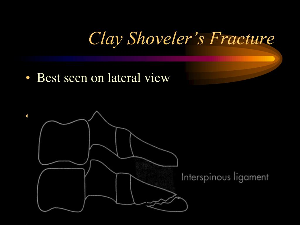 Clay Shoveler's Fracture