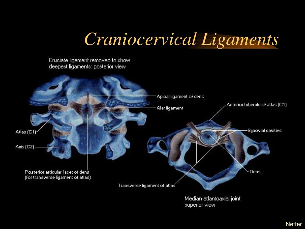 Craniocervical Ligaments