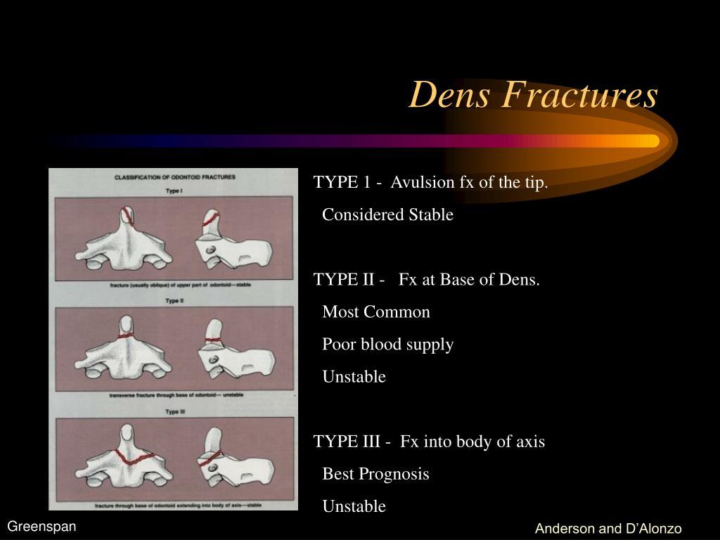 Dens Fractures