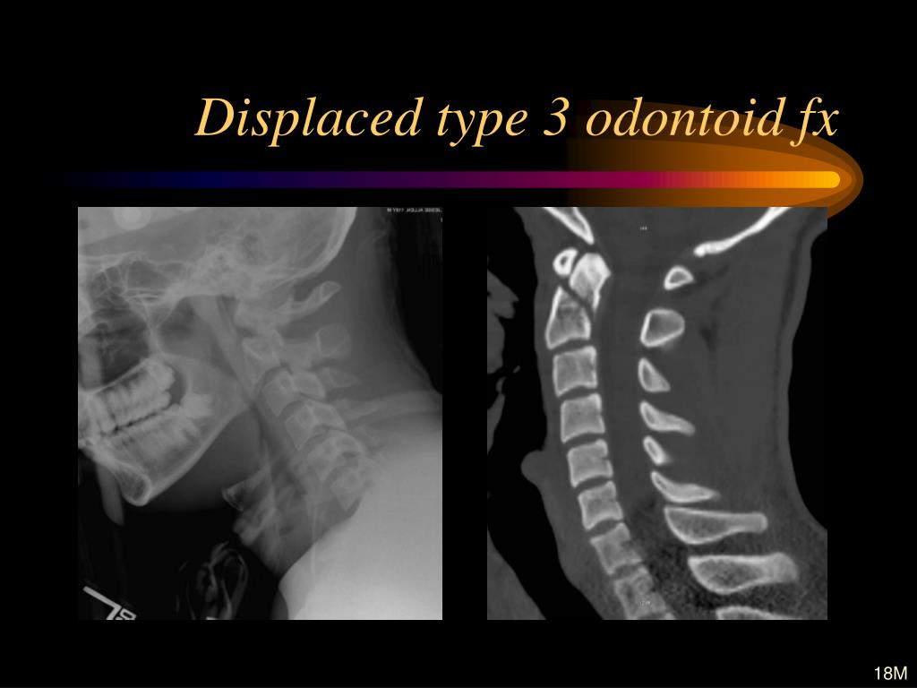 Displaced type 3 odontoid fx