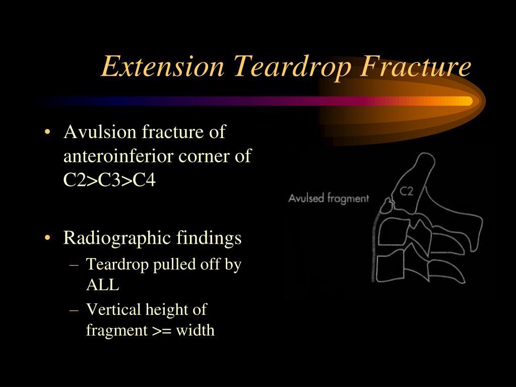 Extension Teardrop Fracture