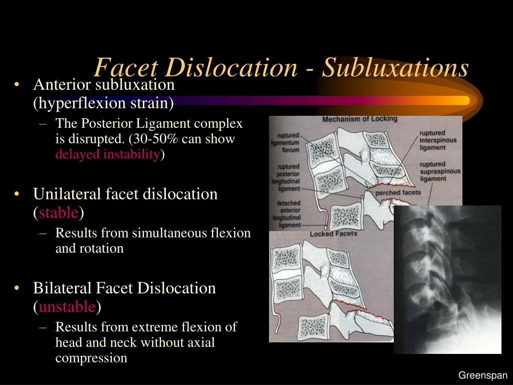 Facet Dislocation - Subluxations
